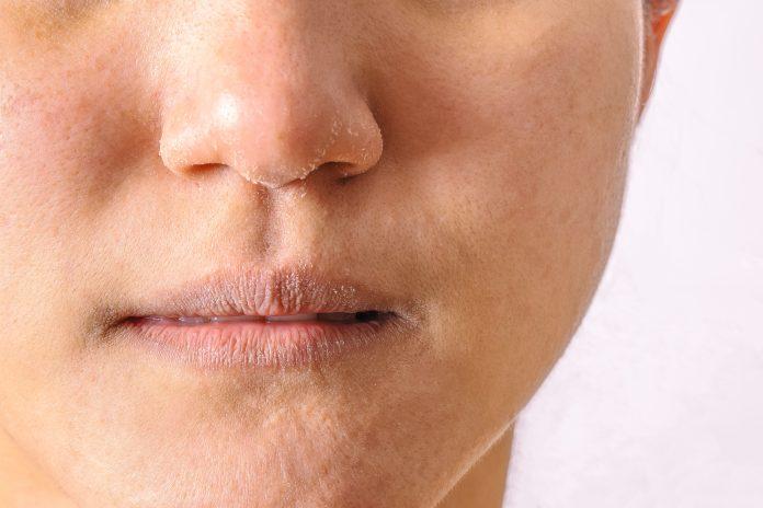 bibir kering selama puasa