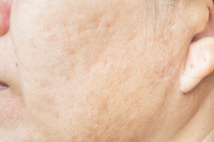 Penyebab utama pori-pori besar