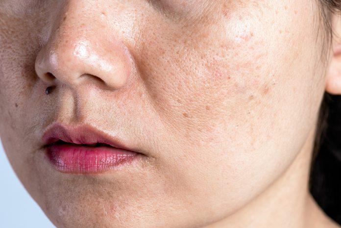 cara mengatasi wajah berminyak